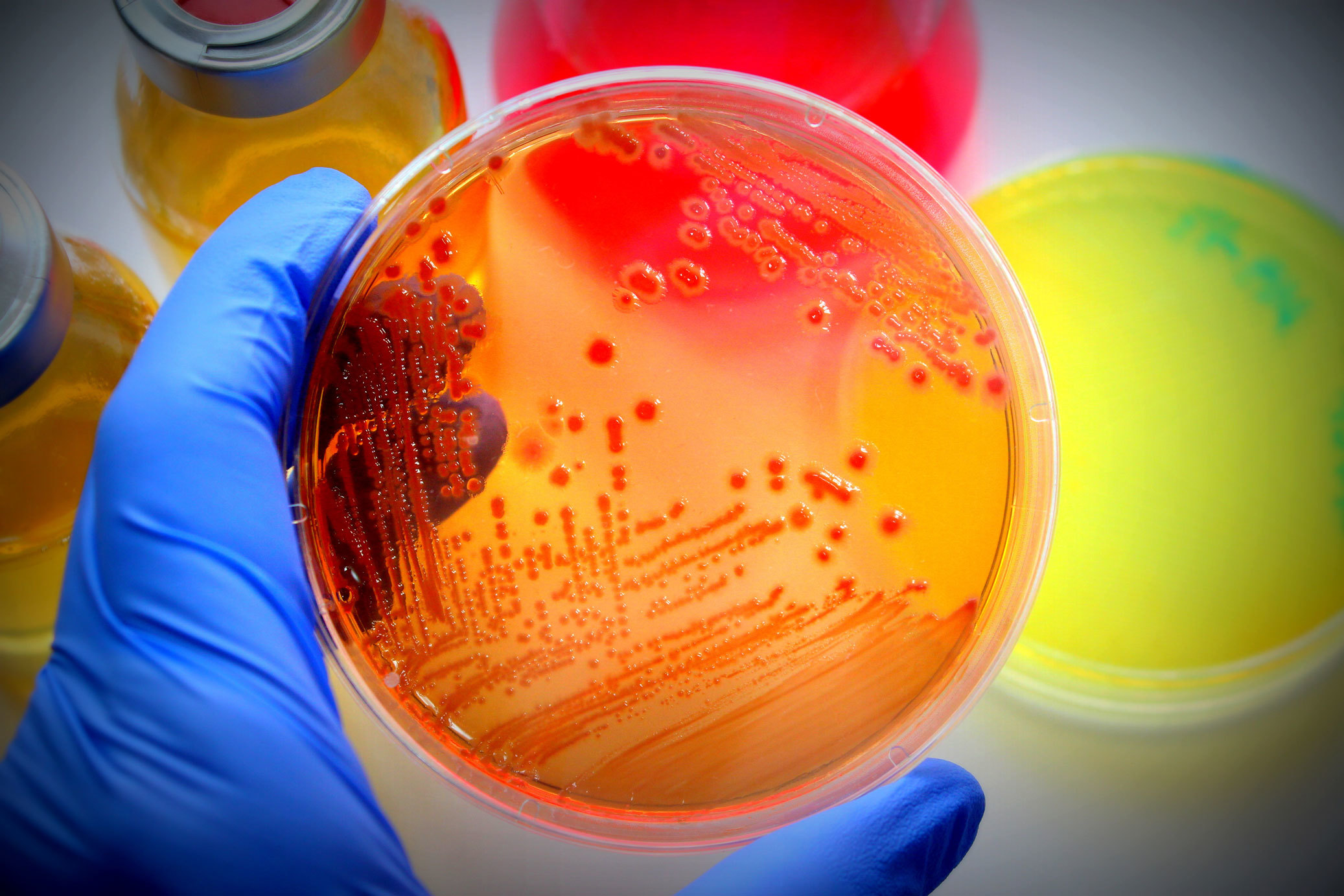 A hand holds microbiological petri dish